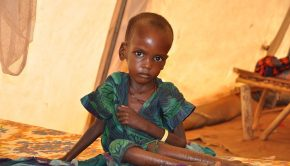 1024px-A_malnourished_child_in_an_MSF_treatment_tent_in_Dolo_Ado