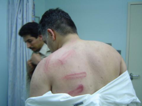 Beating marks on the back of Nabeel Rajab after police attacked peaceful protest in 2005 (Wikimedia Commons)