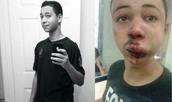 Tariq Khdeir, in a recent photo and after the beating recorded on video